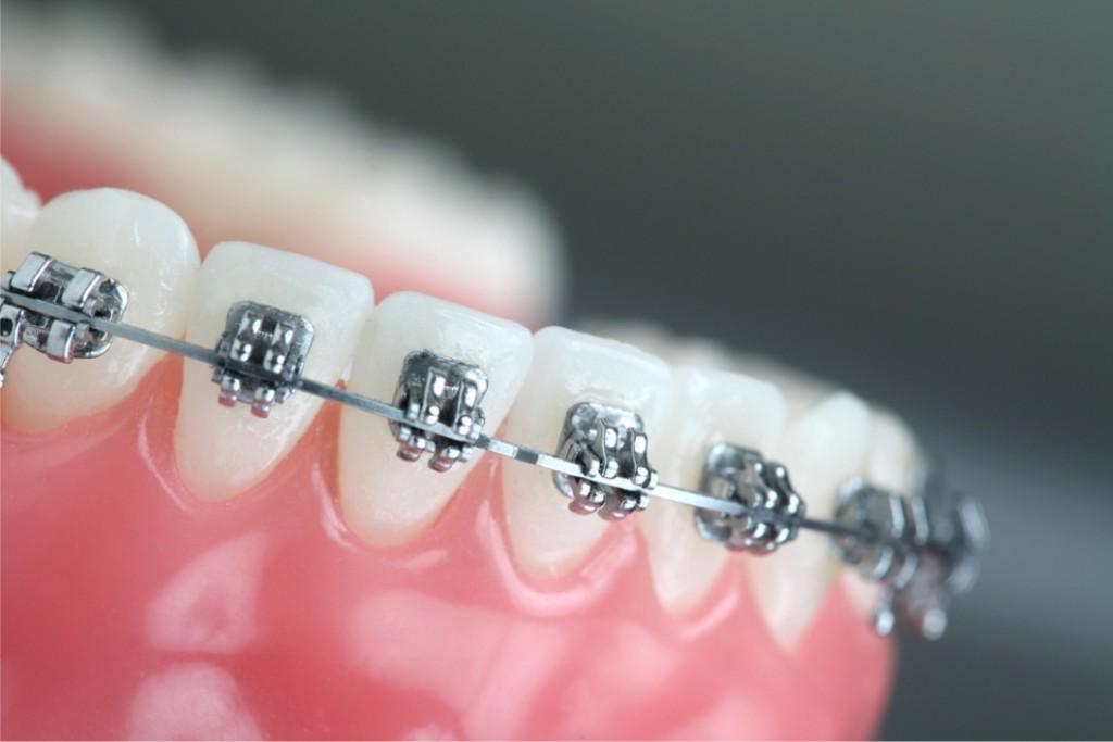 orthodontikoi-thessaloniki-aristeidis-melkos